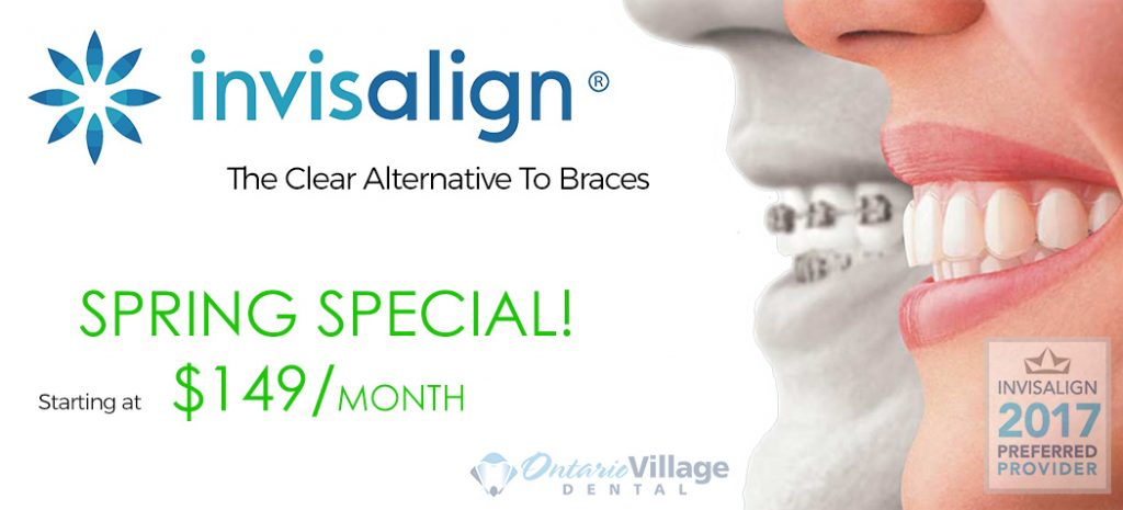 invisalign specials near me
