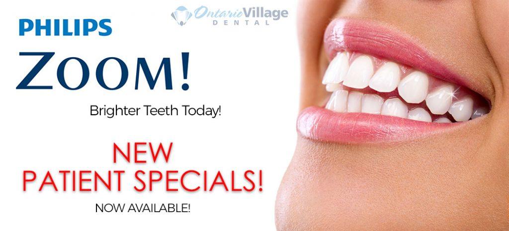 teeth whitening specials